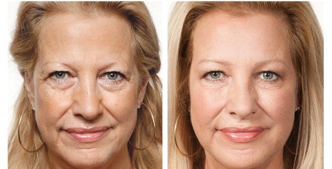 Anti Aging Cream 1