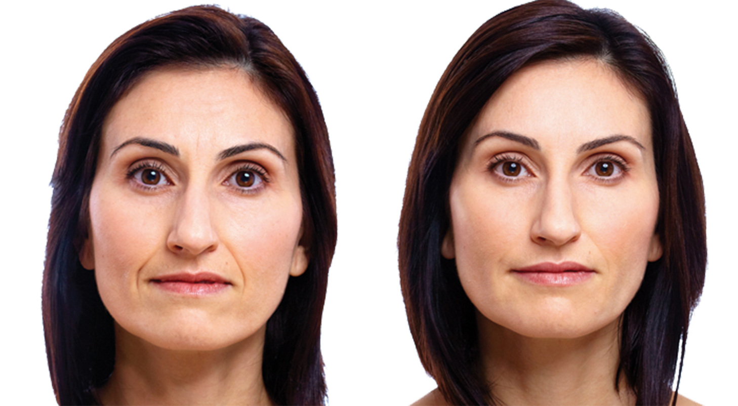 Antiaging cream for face and eye wrinkles